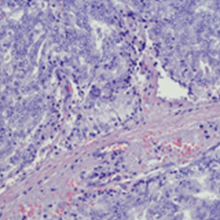 UCSF-Prostate-Cancer-Program-Research-2x