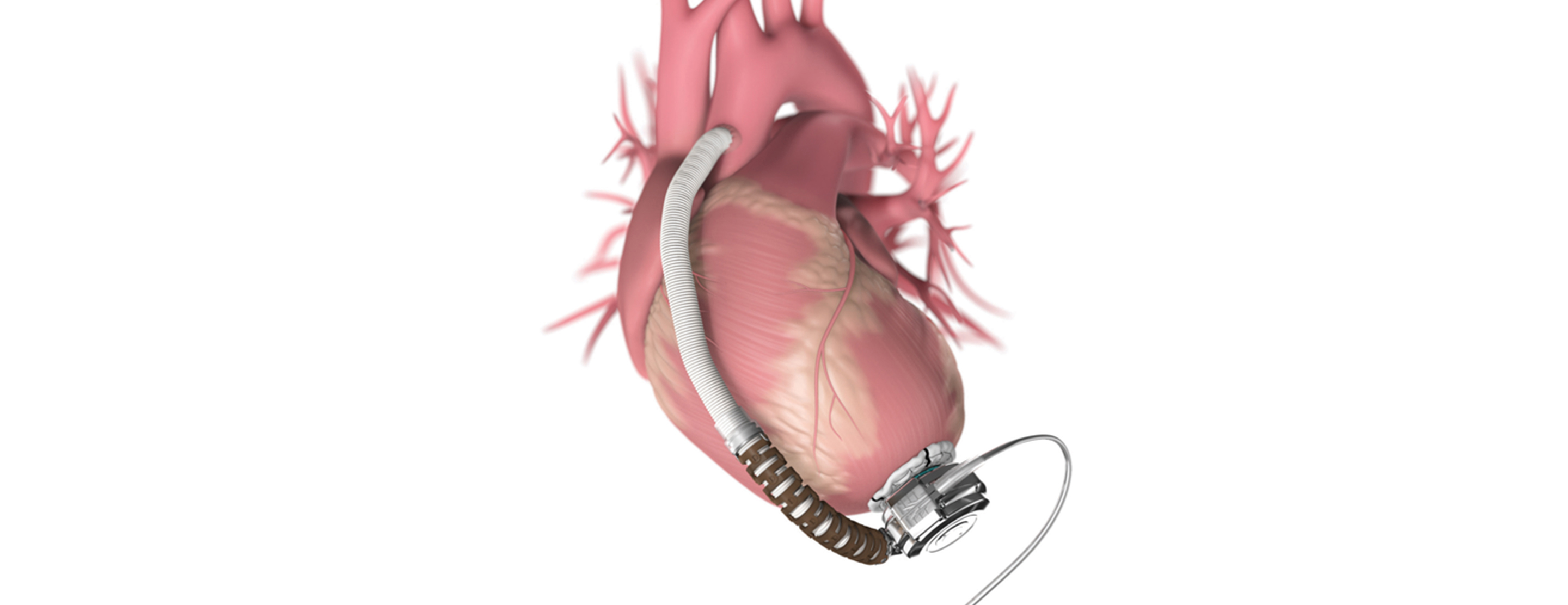 Image result for Ventricular Assist Device
