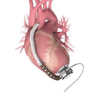 ventricular-assist-device-1290x1290
